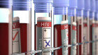 Monthly HIV medication hits roadblock as FDA knocks back approval